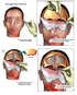 Brain Surgery - Surgical Repairs of Traumatic Brain Injuries