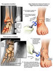 Left Foot Injuries and Surgical Fusion