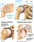 Shoulder Injury - Torn Glenoid Labrum and Rotator Cuff Tendon Tears.
