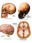 Traumatic Injury of the Skull and Brain