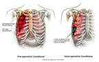 Rib Fracture and Pneumothorax with Placement of a Chest Tube to Re-inflate the Lung