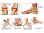 Bilateral Ankle Fractures and Surgical Repair