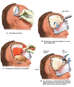 Post-accident Head Injury with Surgical Repairs