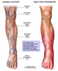 Symptoms of Deep Vein Thrombosis in the Lower Leg