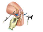 Insertion of Arthroscopic Instruments in Knee