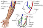 Arteriovenous Access