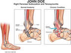Right Peroneal Subluxation and Tenosynovitis