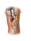 Drilling Fixation Holes in the Patella