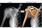 Colorized X-Ray Film with Post-accident Right Shoulder Fracture