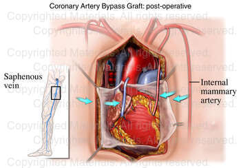Coronary Artery Bypass Graft: post-operative