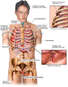 Male Torso with Post-accident Injuries to the Scalp, Thorax, Ribs, Liver and Pelvis