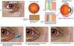 Right Eye Injuries with Surgical Repairs