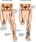 Multiple Leg Fractures with Surgical Repairs