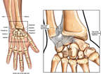 Right Wrist Injuries
