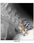 Colorized Lateral X-Ray Film of the Cervical Spine with Anterior and Posterior Fusion