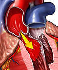 Aortic Valve Regurgitation (Insufficiency)
