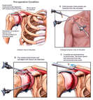 Right Shoulder Impingement and Rotator Cuff Injury with Arthroscopic Repair