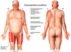 Anterior and Posterior Male Figure Following Burns and Skin Grafting Procedures
