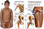 Child with Post-accident Fractures to the Right Shoulder and Hip with Surgical Fixation of the Right Femoral Head