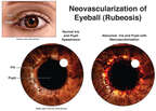 Neovascularization of Eyeball (Rubeosis)