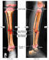 Right Lower Leg Fractures to the Tibia and Fibula