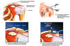 Left Shoulder Impingement Syndrome with Arthroscopic Repairs