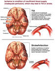 Transient Ischemic Attack (TIA) and Subsequent Infarction