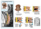 Cervical Disc Injury with Surgical Discectomy and Fusion
