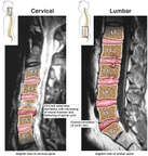 MRI Interpretations of the Cervical and Lumbar Spine