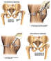 Degeneration of Left Hip with Surgical Reconstruction
