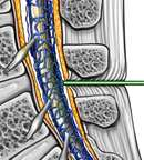 Epidural Injection - Into Bloodstream