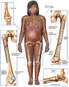 Pregnanat Female Figure with Post-operative Fixation of the Elbow, Femurs Bilaterally and Foot