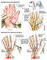 Additional Right Hand Nerve and Tendon Repairs
