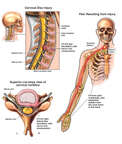 Spinal Cord - C5-6 Disc Herniation with Chronic Neurological Deficits