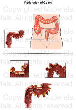 Perforation of Colon