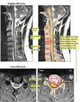 Cervical Disc Injury