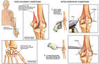 Post-accident Left Elbow and Hand Fractures with Surgical Fixation