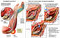 Persistent Left Ulnar Nerve Paresthesia with Revision Surgery