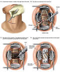 C4-5 and C5-6 Cervical Discectomies, Corpectomy and Fusion