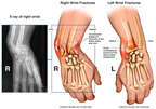 Bilateral Wrist Fractures