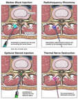 Nerve Block Procedures