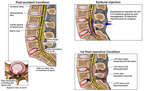 Progression of Lumbar Condition