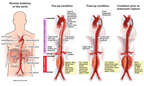 Progression of Aortic Aneurysm