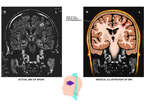 Coronal Views of Brain