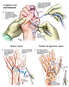 Additional Vascular, Tendon and Ligament Repairs to the Right Hand