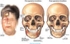 Multiple Facial Injuries with Surgical Fixation