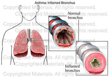 Asthma: Inflamed Bronchus