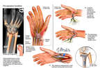 Right Wrist Injuries with Surgical Repairs