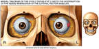 Interruption of Nerve Innervation Causes Medial Tracking of the Eye