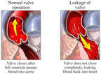 Aortic Valve Bloodflow